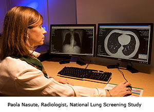 Paola Nasute, Radiologist, National Lung Screening Study
